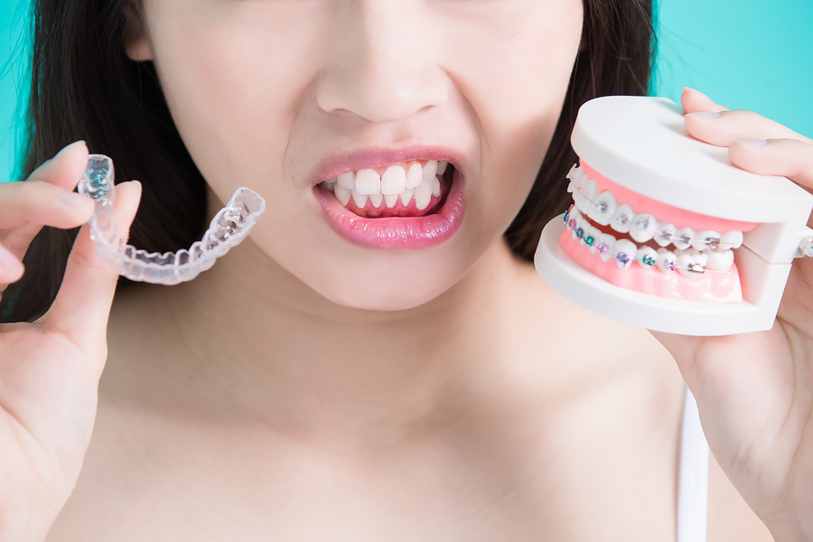How To Tell If Your Jaw Is Misaligned Medcenter Tmj